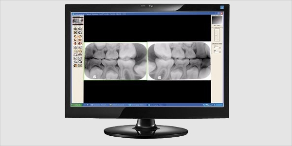 visix imaging software
